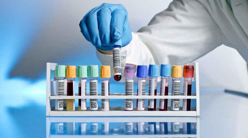 Онкомаркеры в гинекологии — Твой гинеколог