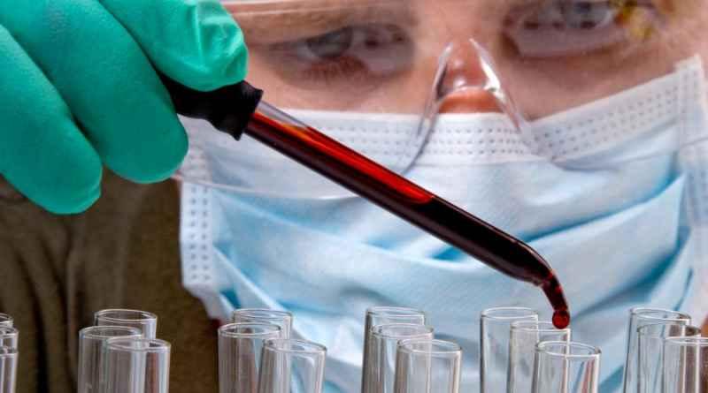 Анализ крови реактивный белок норма у женщин